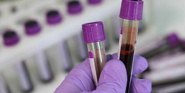 تشخیص بیش از 50 نوع سرطان با یک آزمایش خون